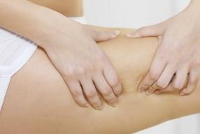 Tips tegen cellulite